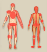 Click her eto see the interactive Aches & Pains Diagram